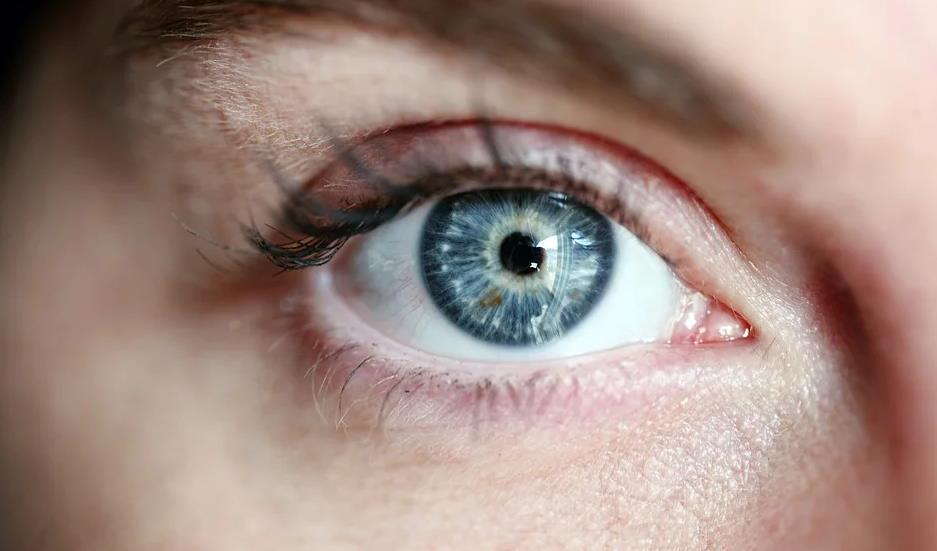 Torische Kontaktlinse